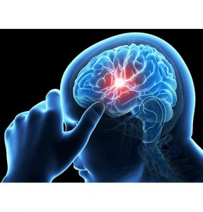 Stroke Treatment in Siliguri